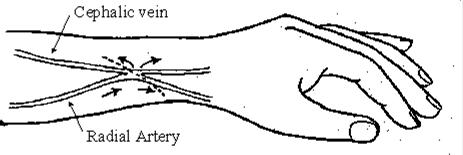 Av Fistula Radiocephalic Pics For > Radiocep...