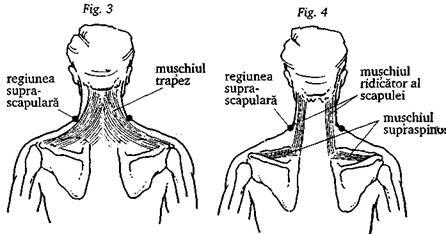 De la nervul ciupit in partea inferioara a spatelui care unguent