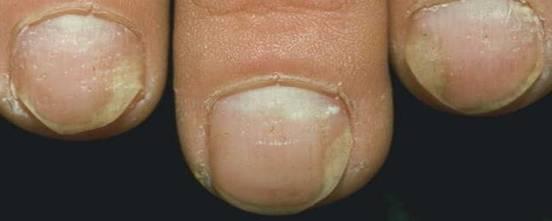 trixera dermatita atopica cremated