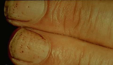 seboreica dermatita atopica la